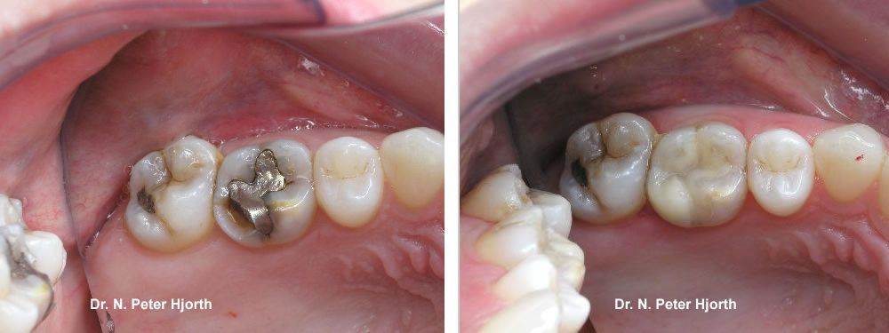 fractured tooth repaired - bonded filling