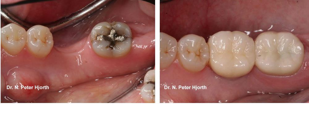 missing first molar replaced with dental implant 2